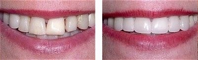 Beautiful Veneers