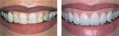 Beautiful Porcelain Crowns